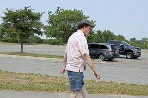 Gặp người đàn ông có thể xoay ngược khớp gối, bàn chân ra sau để đi bộ