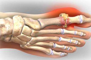 Người mắc bệnh gout có nguy cơ tử vong cao khi bị đau tim