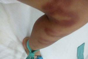 Bé trai bị người tình của mẹ đánh dã man chỉ vì nôn cháo