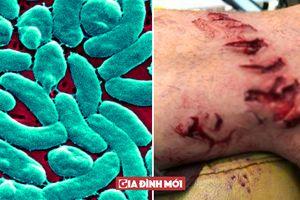Thoát chết khỏi miệng cá mập lại suýt 'cụt chân' bởi vi khuẩn ăn thịt người