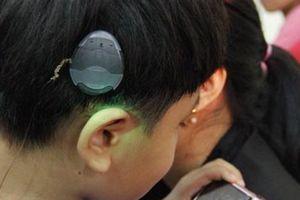 Cơ hội trẻ nghe kém được cấy ốc tai điện tử miễn phí