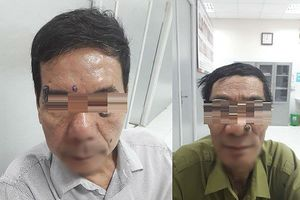 Hai bệnh nhân đến viện để đốt nốt ruồi, không ngờ cùng phát hiện ung thư