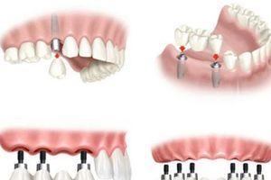 Hỗ trợ 20% chi phí trồng răng giả bằng Implant ETK Active