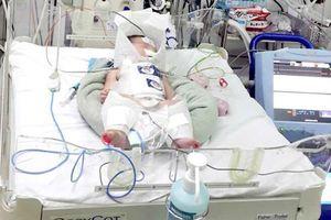 Mẹ vỡ gan lúc chuyển dạ, bé sơ sinh sống sót thần kỳ
