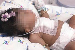 Bé gái sinh non nặng 2kg bị đa dị tật tim hồi sinh kỳ diệu