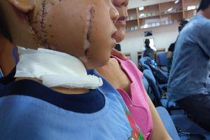 Cha ngất lịm khi nhìn thấy con trai 6 tuổi bị cánh quạt công nghiệp cắt nát mặt