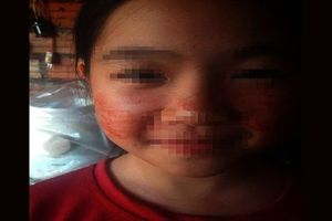 Chuyên gia y tế lý giải trường hợp bệnh nhi bị 'mồ hôi máu'