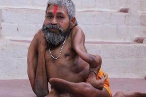 Căn bệnh lạ khiến cho người đàn ông này được ví như một vị thần
