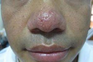 Trị bệnh mũi đỏ bằng Đông y