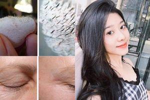12 mẹo làm đẹp đơn giản giúp khắc phục mọi vấn đề về da và tóc, là phụ nữ nhất định phải biết