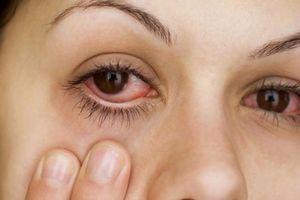 Thủ thuật đơn giản để trị chứng mắt đỏ