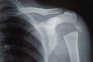 Bệnh lạ: Người phụ nữ hóa 'người cao su' vì xương biến mất