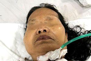 Cứu sống cụ bà bị đứt khí quản do dao mổ gà