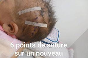 Bác sĩ rạch trúng đầu em bé trong ca sinh mổ, nhưng lại nói 'không nghiêm trọng'