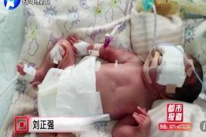 Thoát chết từ đám cháy, bị bỏng hơn 85% cơ thể, thai phụ vẫn 'vượt cạn' thành công