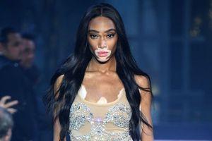 Người mẫu bạch biến đầu tiên trên thế giới gia nhập show trứ danh Victoria's Secret 2018