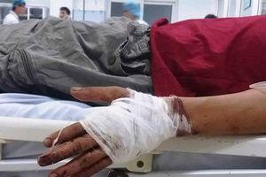 Thực hư vụ thanh niên bị chém đứt tay khi cứu người