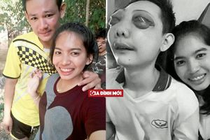Cô gái không rời bạn trai bị ung thư mắt cho đến giây phút cuối đời