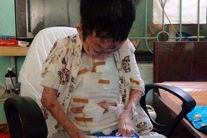 Xót xa gia cảnh của cậu bé 11 tuổi bị 'ăn mòn' cơ thể