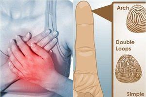 Nghiên cứu mới: Chẩn đoán nguy cơ mắc bệnh chỉ bằng cách xem dấu vân tay