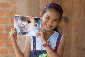 41.000 trẻ em đã được phẫu thuật nụ cười