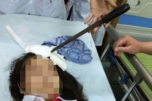 Vụ học sinh bị phi dao trúng đầu ở Hà Nam: Bộ GD&ĐT chỉ đạo 'nóng'