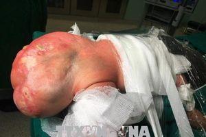 Bóc tách thành công khối u quái khổng lồ ở trẻ sơ sinh