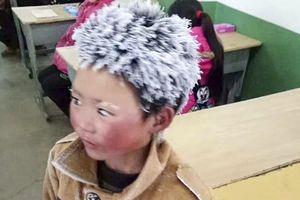 Cậu bé tóc đóng băng ở Trung Quốc 'khổ vẫn hoàn khổ'