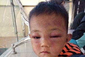 Tin thêm về bé trai 2 tuổi ở Nghệ An bị bố dượng bạo hành dã man