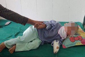 Cháu bé 4 tuổi bị chó cắn trọng thương mặt đã ổn định sức khỏe