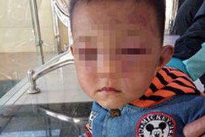 Không xử lý hình sự vụ bố dượng bạo hành bé trai 2 tuổi