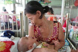 Việt Nam đứng thứ 16 trên thế giới về số người chết vì bệnh lao