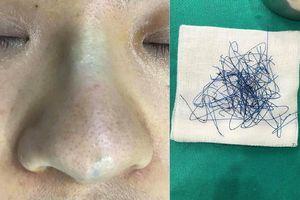 Bác sĩ gắp ra búi chỉ bằng nylon từ trong mũi cô gái