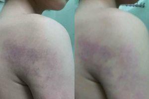 Vụ học sinh lớp 1 bị giáo viên đánh ở Hà Nội: Không phải lần đầu cô giáo này dùng bạo lực