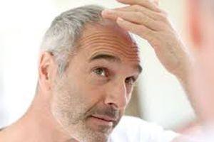 Phát hiện mới về tóc bạc