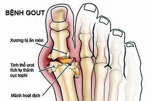 Nguy cơ lạm dụng Corticoid điều trị bệnh xương khớp