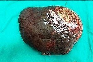 Cắt bỏ khối u cơ mỡ mạch gan nặng 5kg