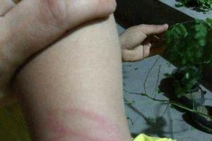 Không đọc viết thông thạo, học sinh lớp 1 bị cô giáo đánh bầm tím tay
