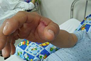 Nhiều trường hợp nhập viện do bị rắn lục đuôi đỏ cắn