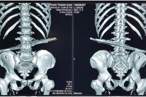 BV huyện Củ Chi: Cứu sống bệnh nhân bị cọc sắt 40cm đâm xuyên bụng
