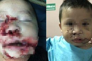 Phẫu thuật tạo hình thành công cho bé trai 2 tuổi bị chó cắn nát mặt