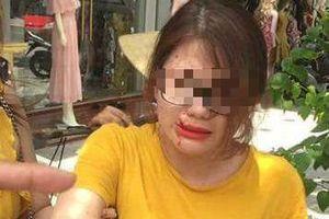 Nữ nhân viên cửa hàng quần áo bị thương sau tiếng nổ