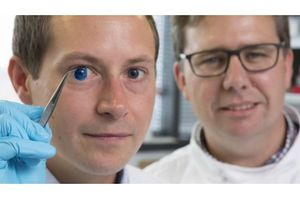 Ứng dụng công nghệ in 3D để tạo ra giác mạc cấy ghép trên người