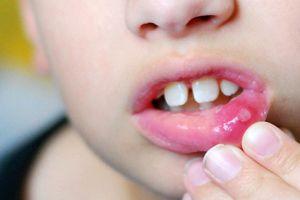 Lở miệng là gì, thuộc lòng những điều sau để điều trị và phòng tránh bệnh loét miệng hiệu quả
