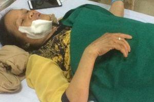 Vụ tai nạn xe khách trên đèo Lò Xo: Lời kể của các nạn nhân