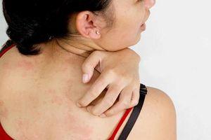 Đừng coi thường ngứa da, đó có thể là biểu hiện của bệnh nguy hiểm