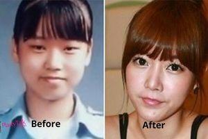 Thừa nhận phẫu thuật thẩm mỹ, sao Hàn người được ủng hộ kẻ bị 'ném đá'