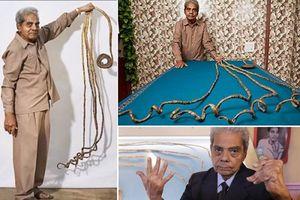 Người đàn ông nuôi móng tay trong suốt 66 năm, 80 tuổi mới quyết định cắt bỏ