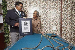 Quyết định cắt bỏ bộ móng tay đã nuôi dài 66 năm