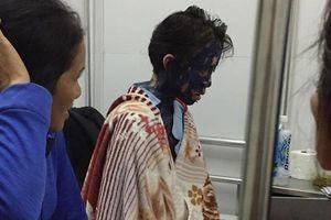 LD1886: Cô giáo trẻ khốn khó chống chọi với căn bệnh quái ác